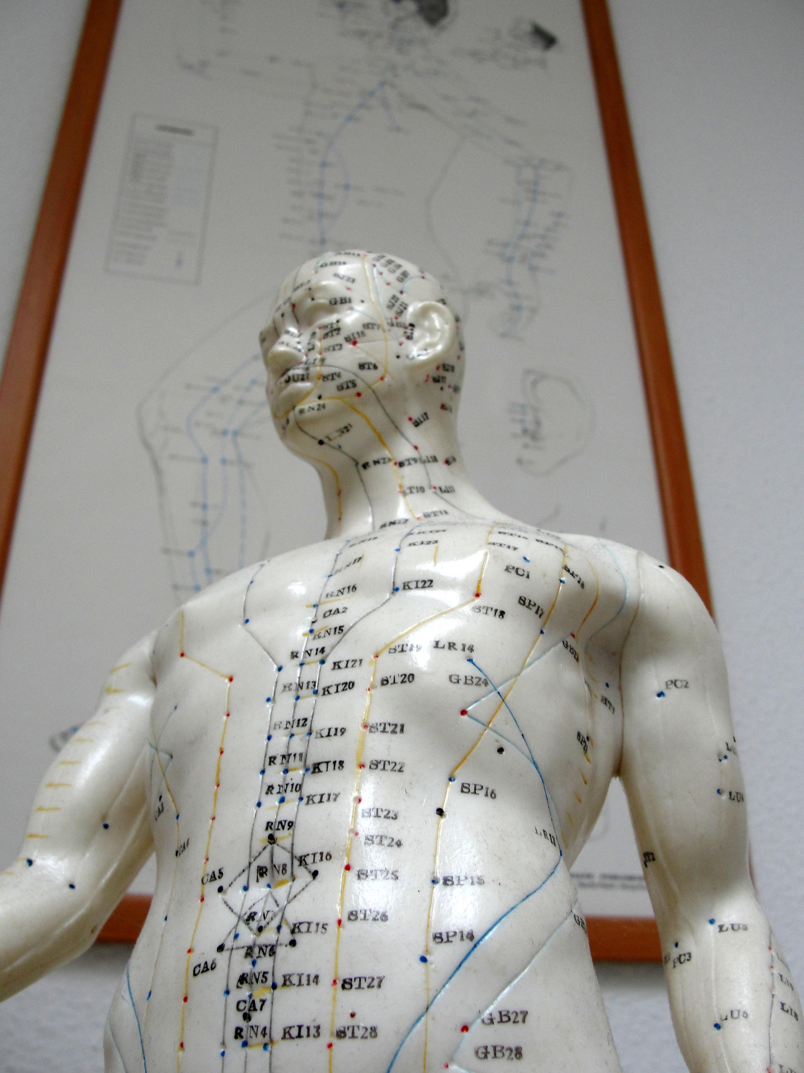 acupunctuur bij lyme